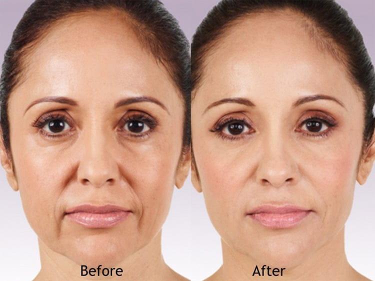 Hình ảnh trước và sau khi sử dụng dịch vụ spa tạo sự tin tưởng từ phía khách hàng